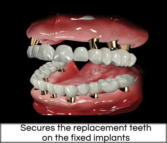 Replacement teeth